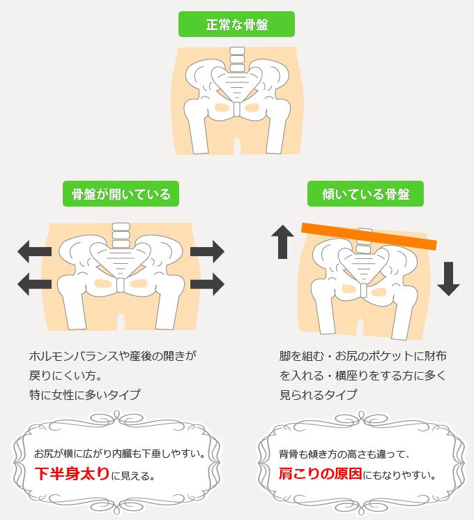 骨盤には様々なタイプがあります。開いている骨盤や傾いている骨盤です。